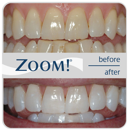 Zoom In Office Whitening